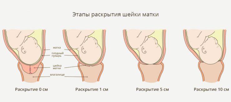 этапы раскрытия шейки матки