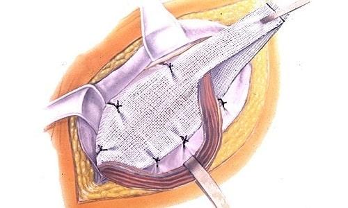 роды после операции