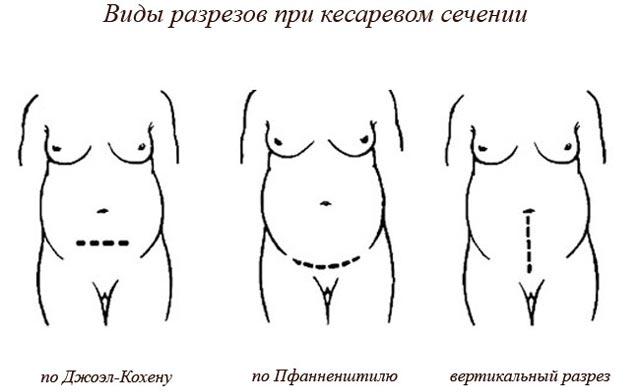 Роды после кесарева сечения