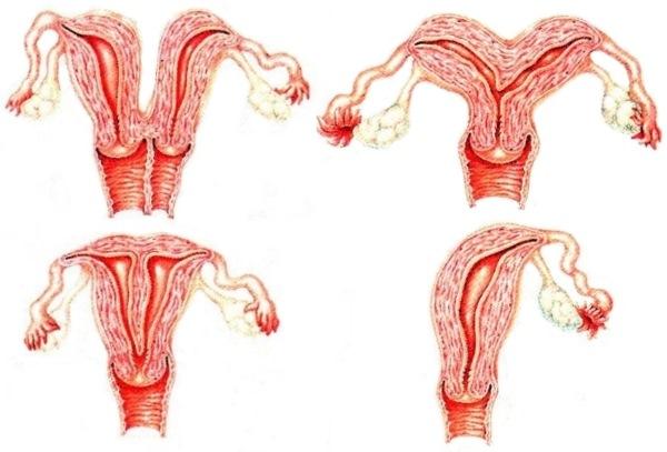 Дискоординорованная родовая деятельность