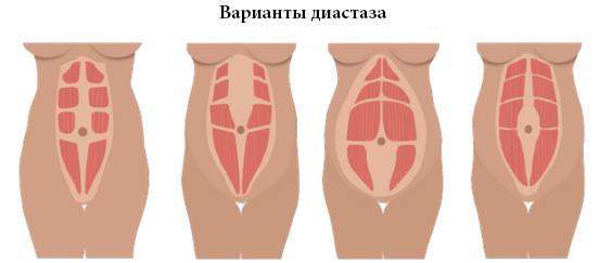 Бандаж сразу после родов