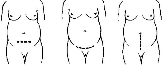 разрыв матки при родах