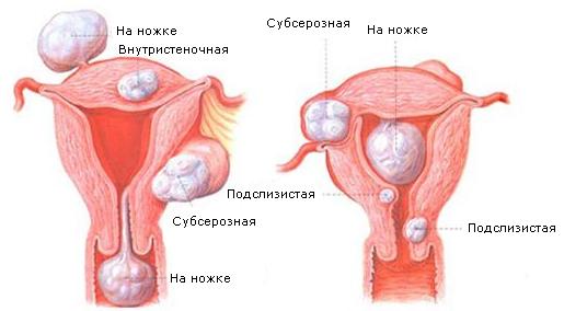 Роды с миомой матки