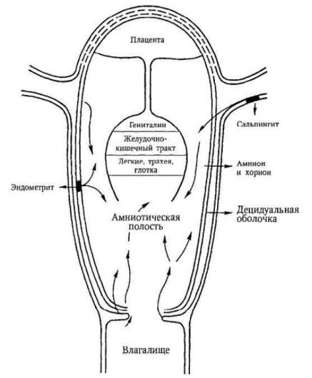внутриутробная инфекция