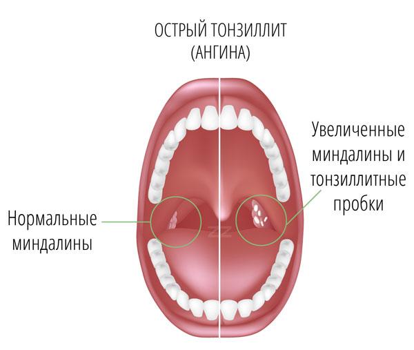 ангина при беременности