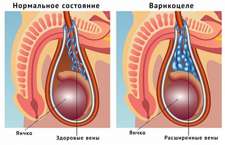 что такое варикоцеле