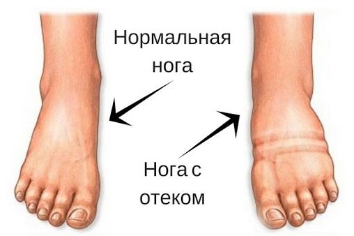 нога с отеком пример
