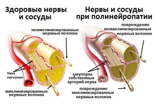 Полинейропатия пример