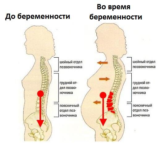 остеохондроз у беременных