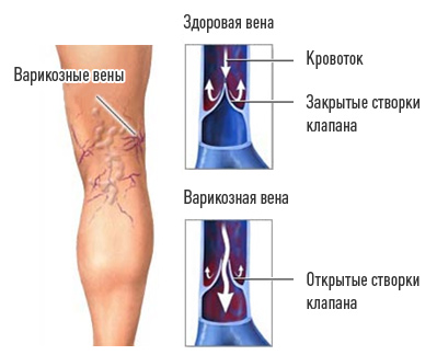 варикоз вены